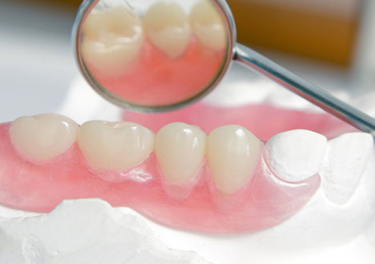 Patients in the Garland area can enjoy naturally beautiful smiles with modern dentures that look nothing like the cheap looking false teeth of the past