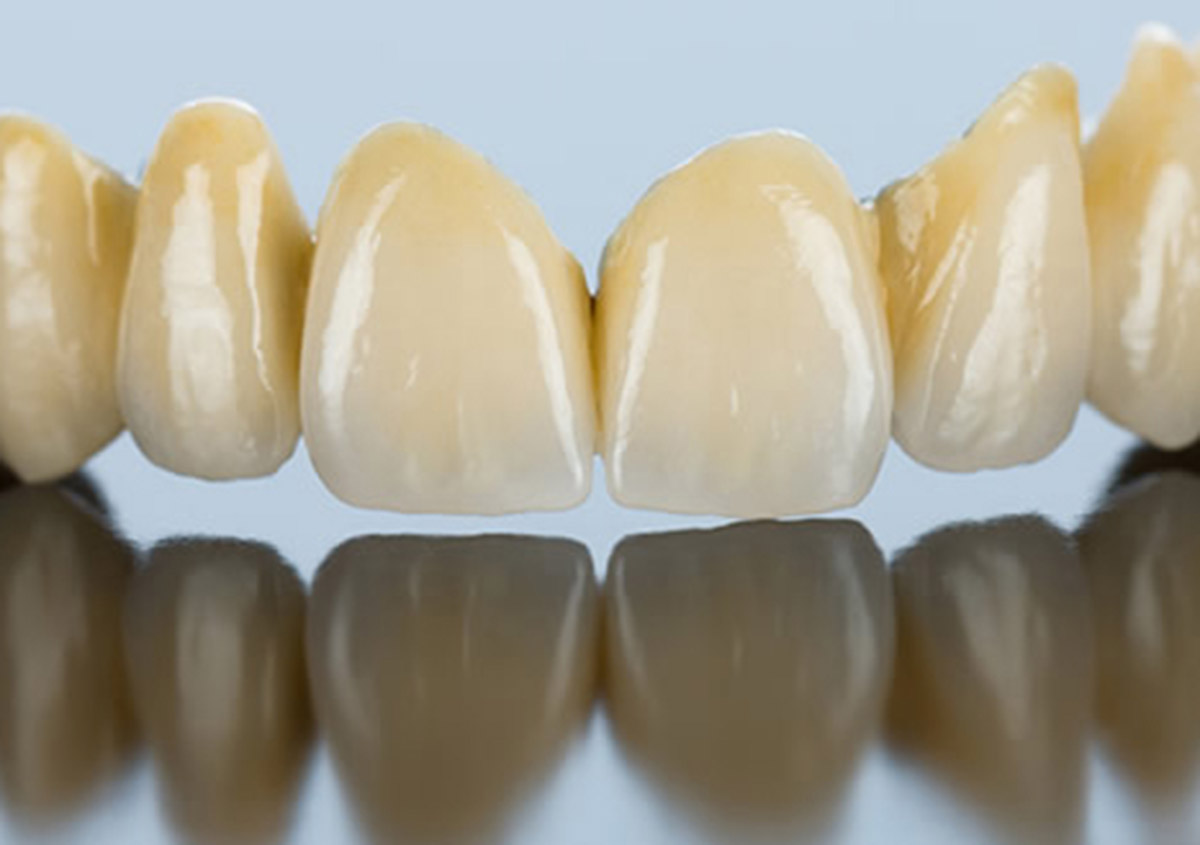 """Patients in the Mesquite, TX area ask, """"What are cosmetic dental bridges?"""