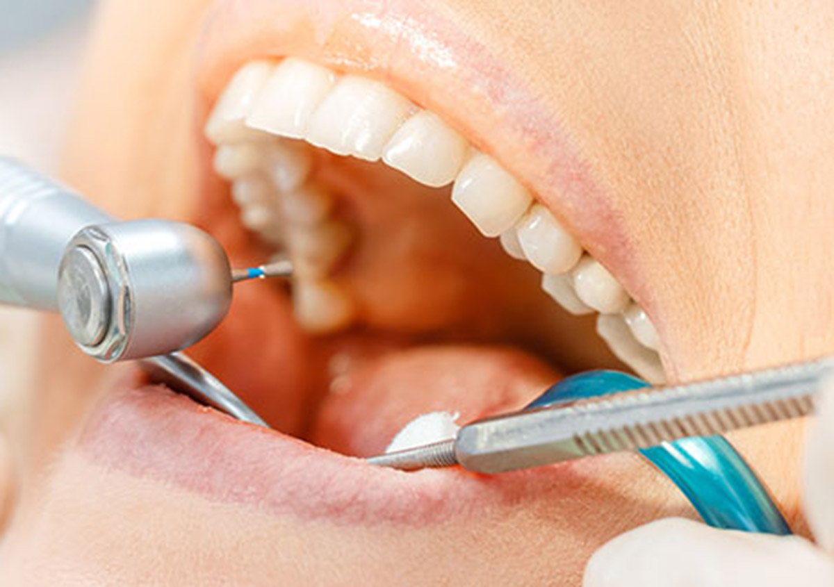 How regular dental visits can help patients in the Garland area avoid a dental emergency