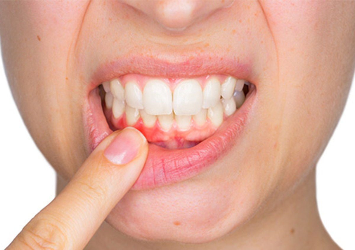 Treatment options for gum disease patients in Garland area