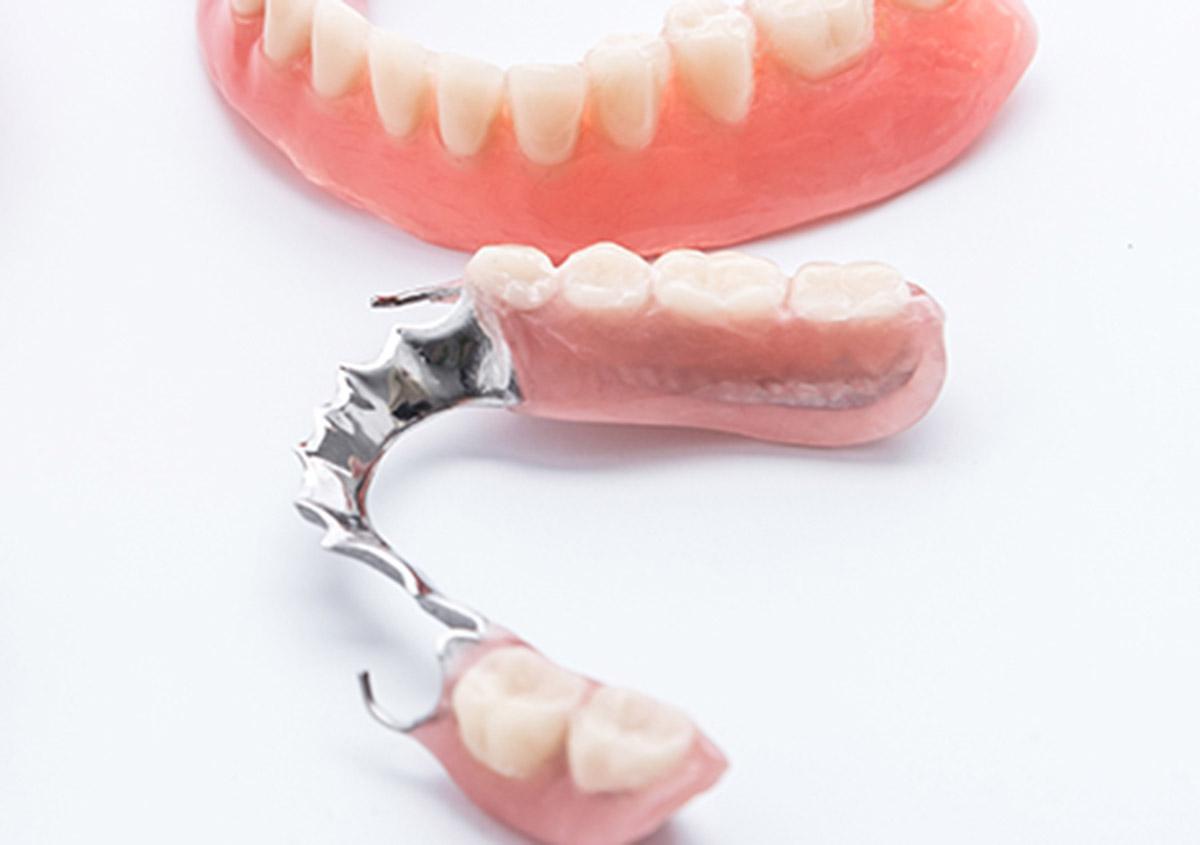 Garland, TX area patients ask about partial dentures