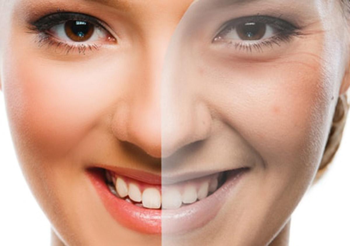 Cost Of Teeth Whitening In Garland Tx Kings Dental